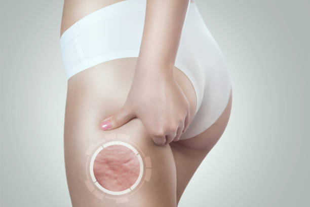 Woman shows cellulite on her thigh. Obesity treatment. stock photo