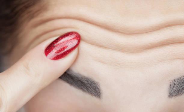 Eine Frau zeigt tiefe Falten auf ihrer Stirn. Alterungsprozess und kosmologische Hautpflege. – Foto