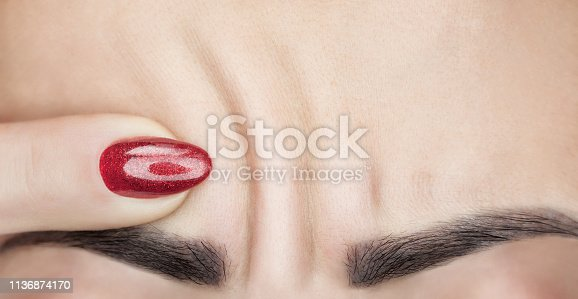 istock A woman shows deep wrinkles on her forehead. Aging process and cosmological skin care. 1136874170