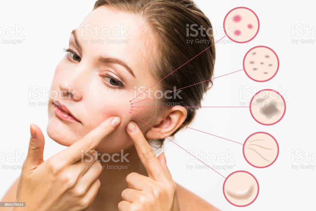 woman skin trouble. pimple, freckle, spot, wrinkle, saggy. stock photo