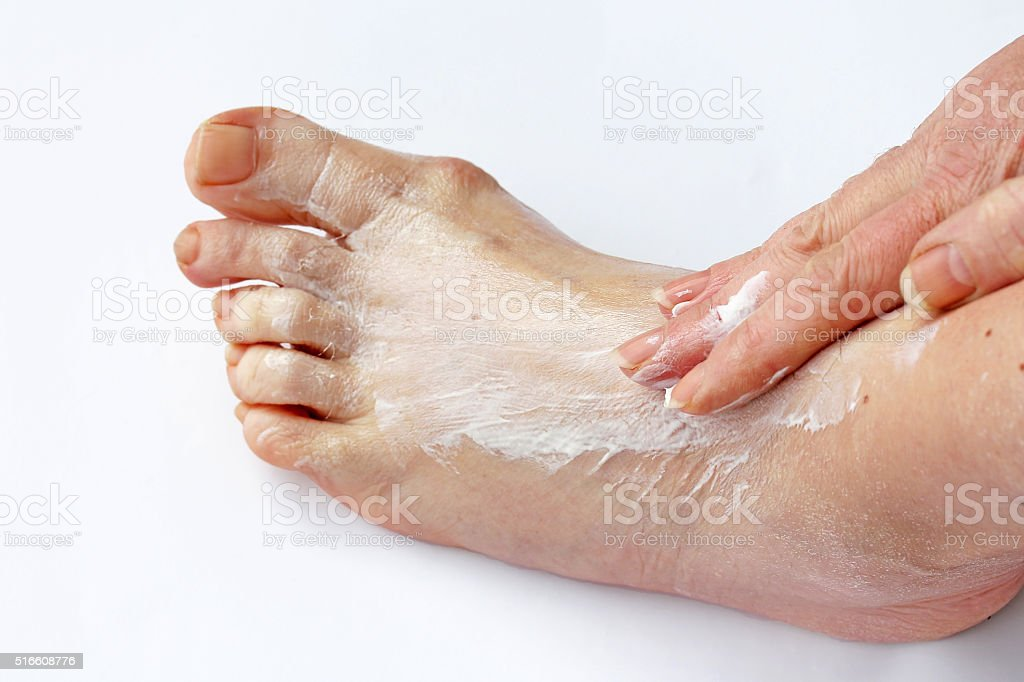 woman spread cream on her foot stock photo