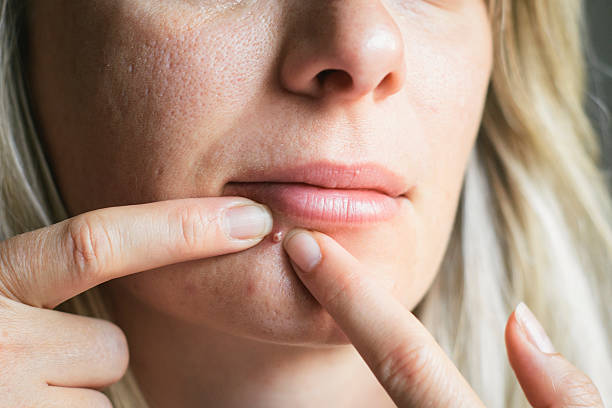 Woman squeezing a big pimple on her face stock photo
