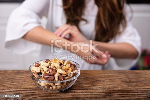 Bowl Of Nuts On Table In Front Of Woman Scratching Her Hand
