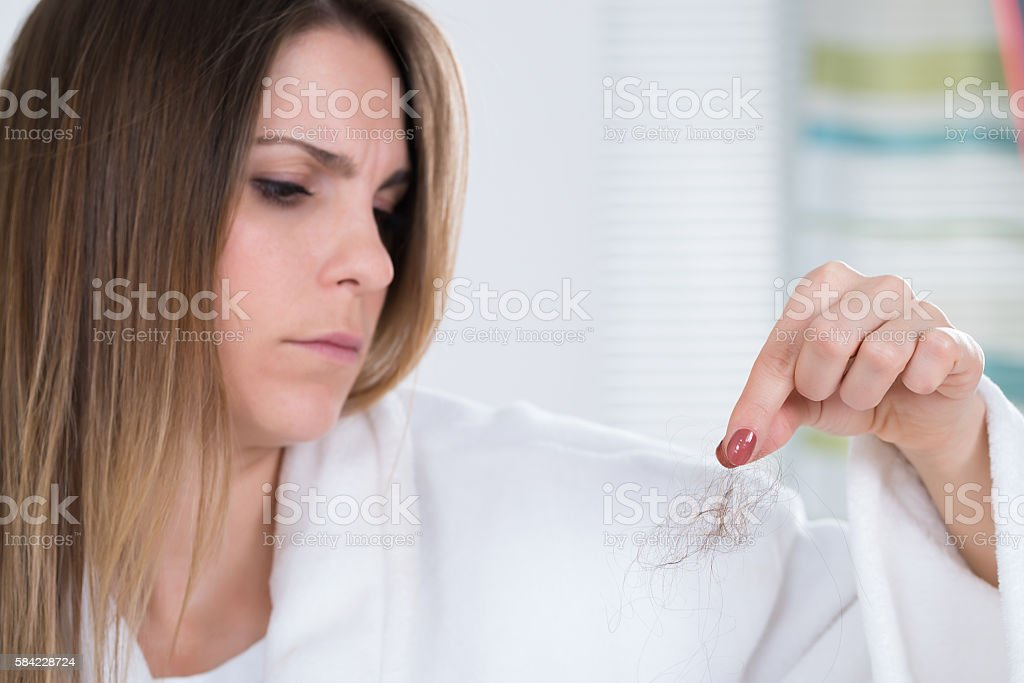 Woman Suffering From Hairloss stock photo