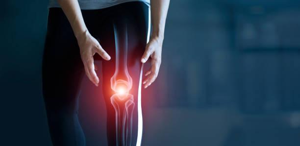 mulher que sofre de dor no joelho, lesão por treino e osteoartrite, problemas tendões e inflamação articular em fundo escuro. - articulação humana - fotografias e filmes do acervo