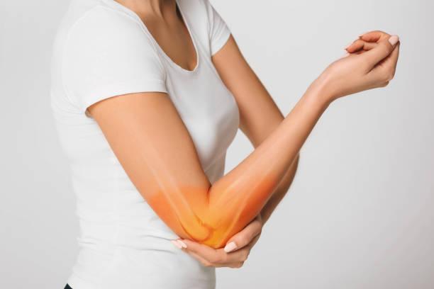 여자는 팔꿈치에 고통을 고통. 이미지 팔 뼈와 팔꿈치의 합성 - 관절 뉴스 사진 이미지
