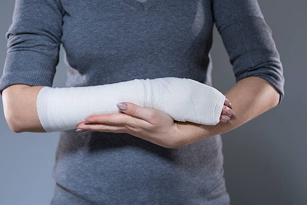 Woman support her hand in bandage stock photo