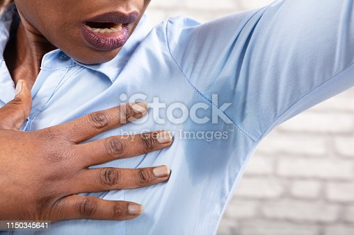 Close-up Of A Woman With Hyperhidrosis Sweating Very Badly Under Armpit