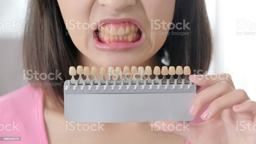 woman take tooth color palette stock photo