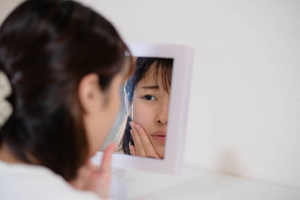 女性の肌荒れの世話 - スキンケア ストックフォトと画像