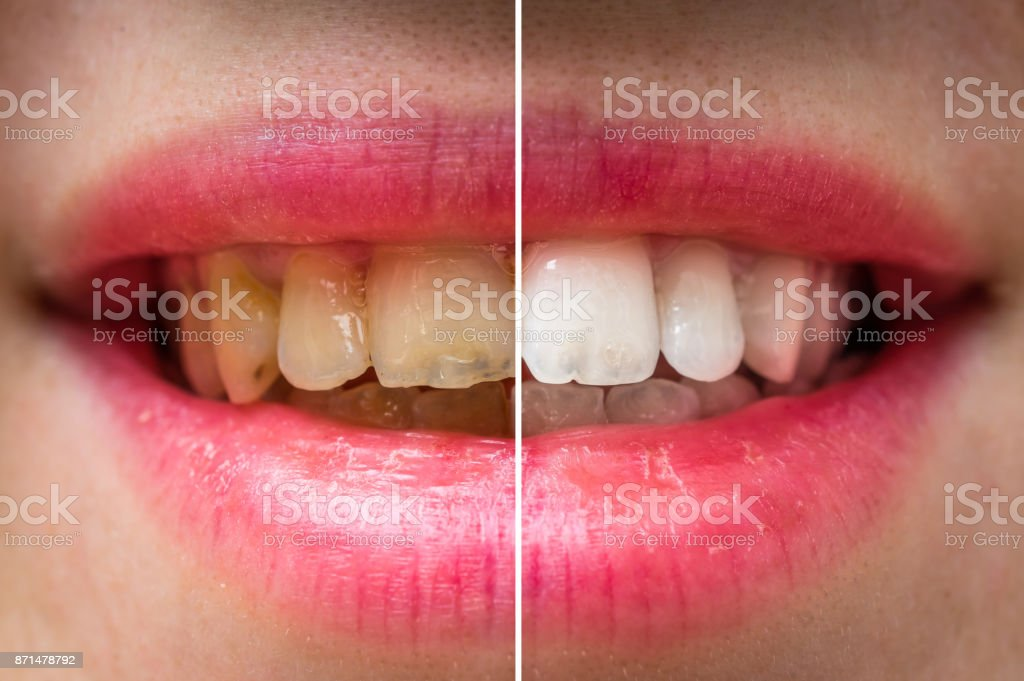 Woman teeth before and after dental treatment stock photo