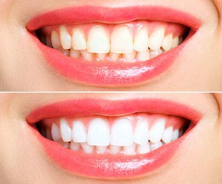 歯の比較写真|アインの集客マーケティングブログ