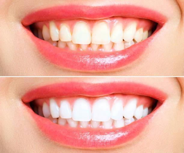 vrouw tanden voor en na whitening. over witte achtergrond - tanden bleken stockfoto's en -beelden
