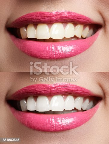 istock Woman teeth before and after whitening 681800648