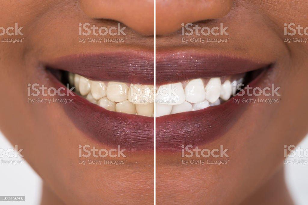 Zähne der Frau vor und nach der Aufhellung – Foto