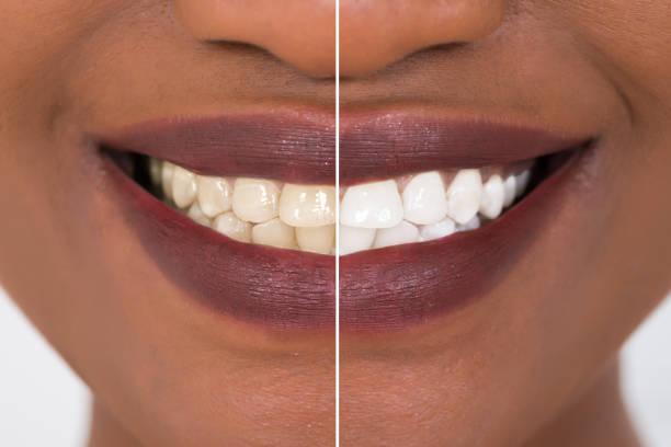 vrouw tanden voor en na de whitening - tanden bleken stockfoto's en -beelden