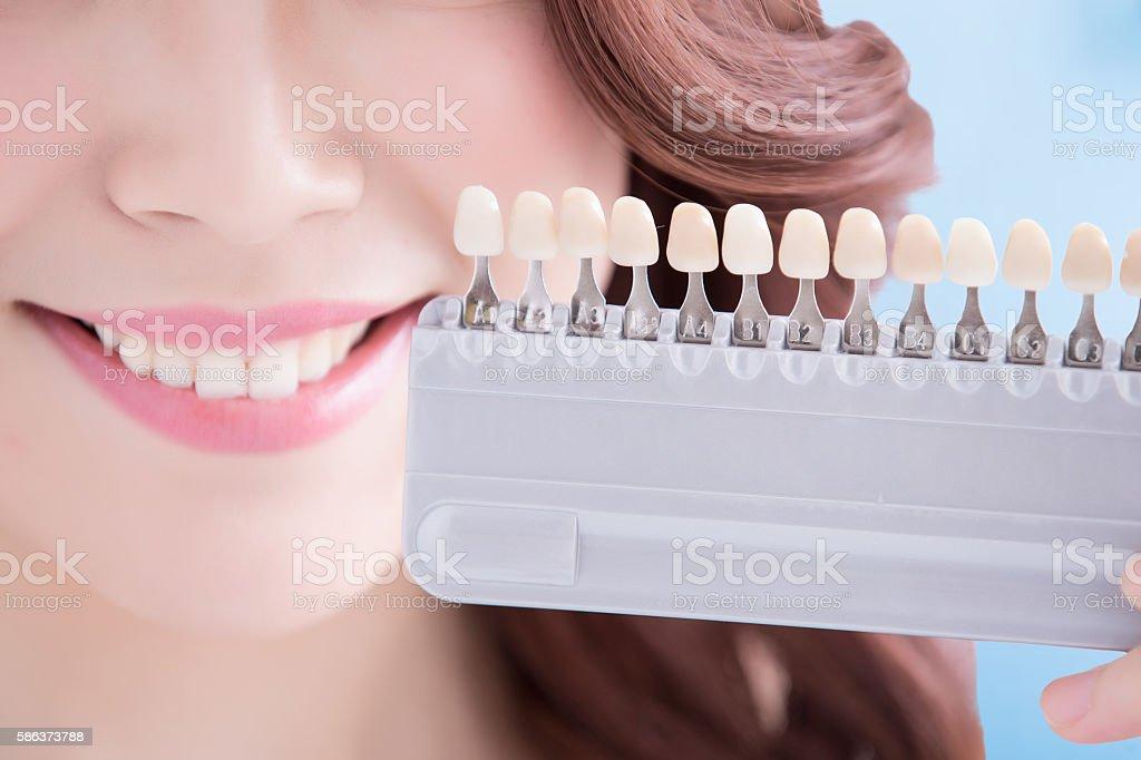 Woman teeth whitening concept stock photo