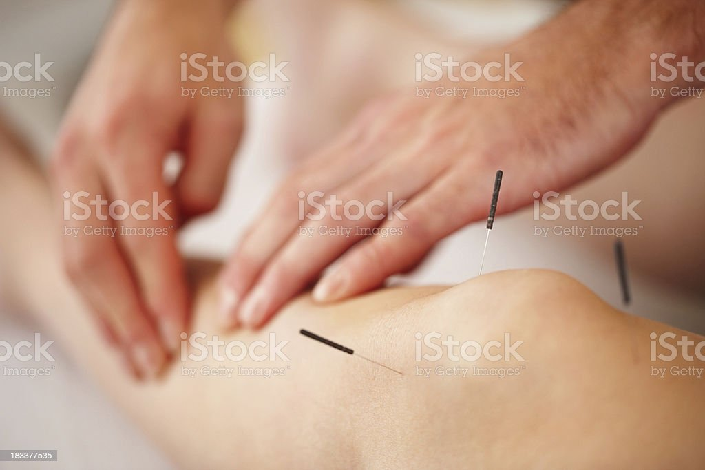 Woman treated with acupuncture royalty-free stock photo