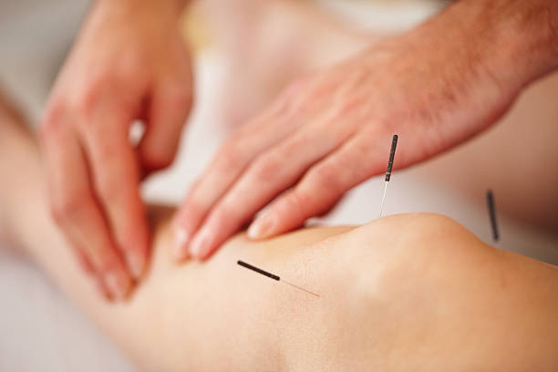 Woman treated with acupuncture stock photo
