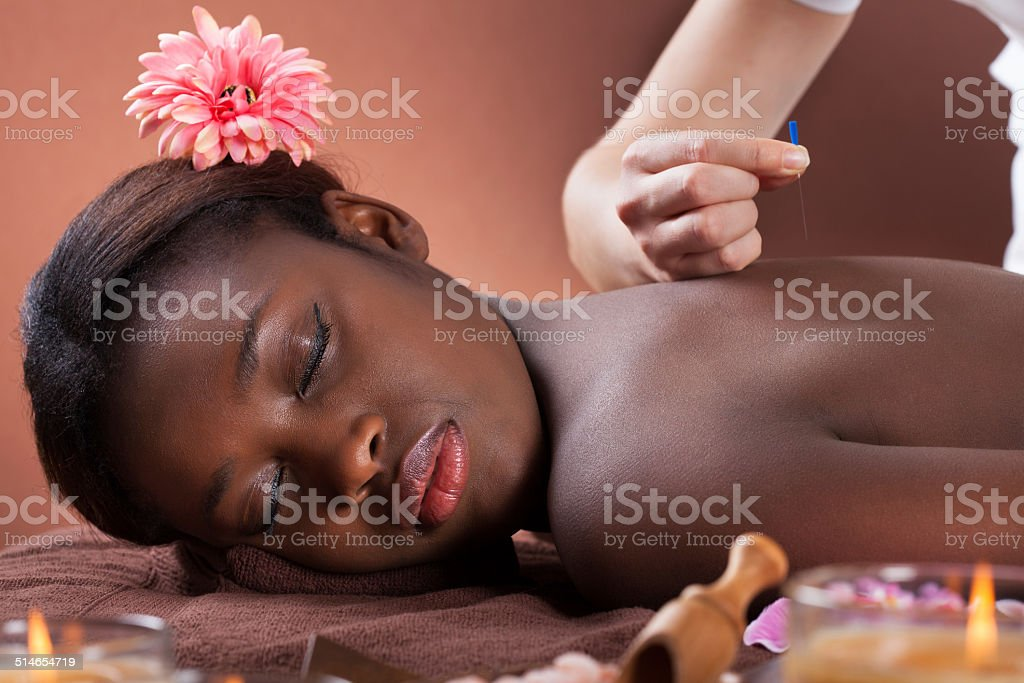 Woman Undergoing Acupuncture Therapy At Salon stock photo