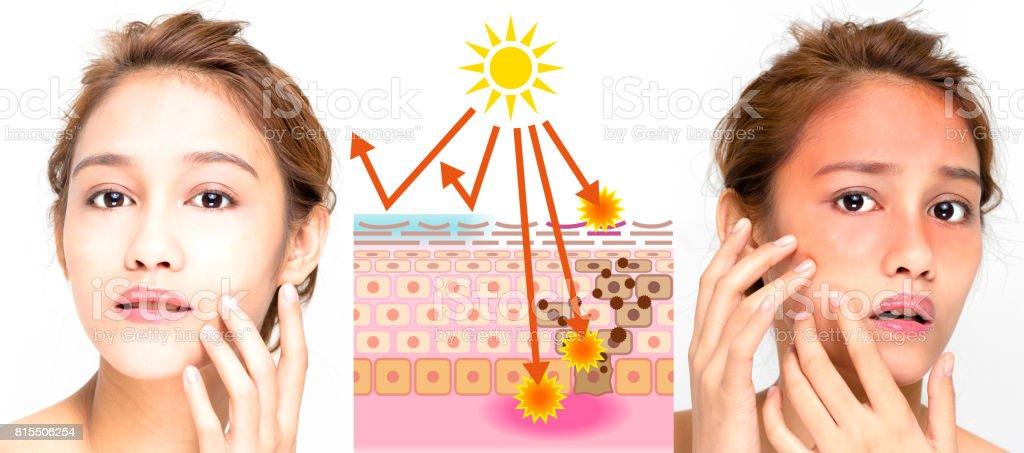 woman using sunscreen and woman getting sunburned stock photo
