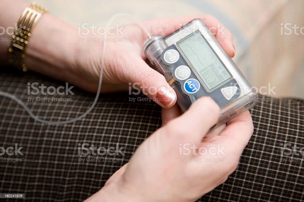 Woman utilizing insulin pump with tubing stock photo