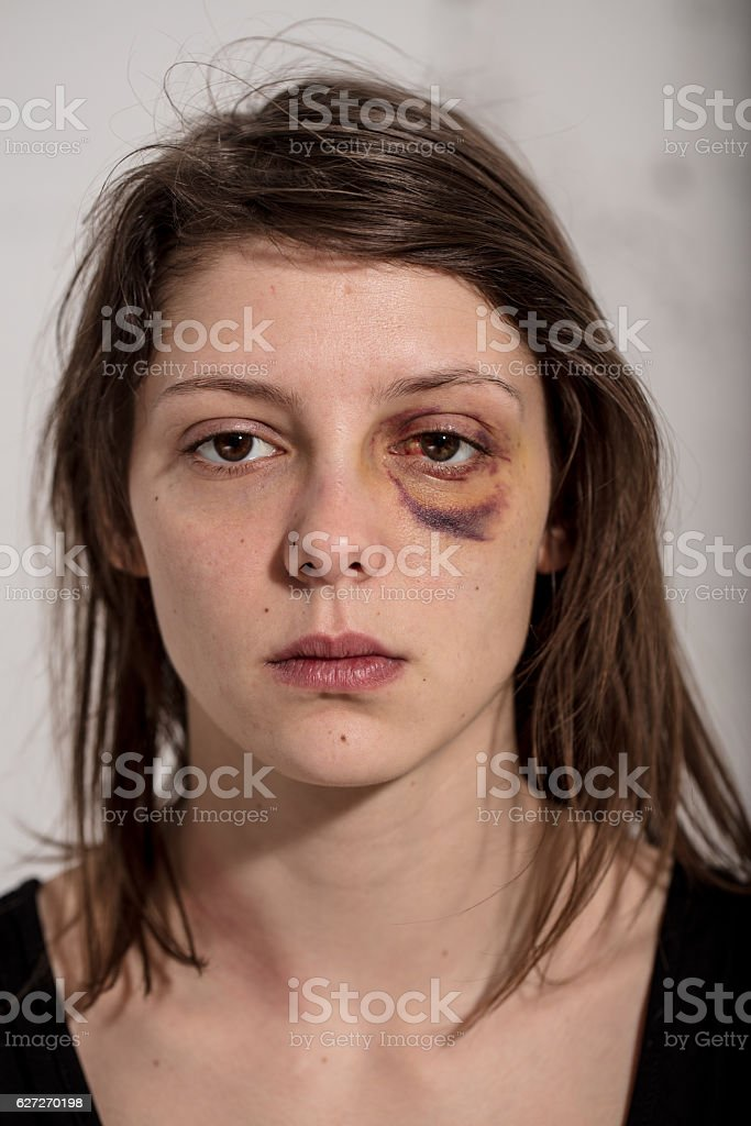 woman victim of domestic violence and abuse stock photo