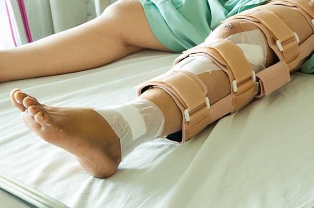 woman wearing a leg brace, broken leg - broken leg stock photos and pictures