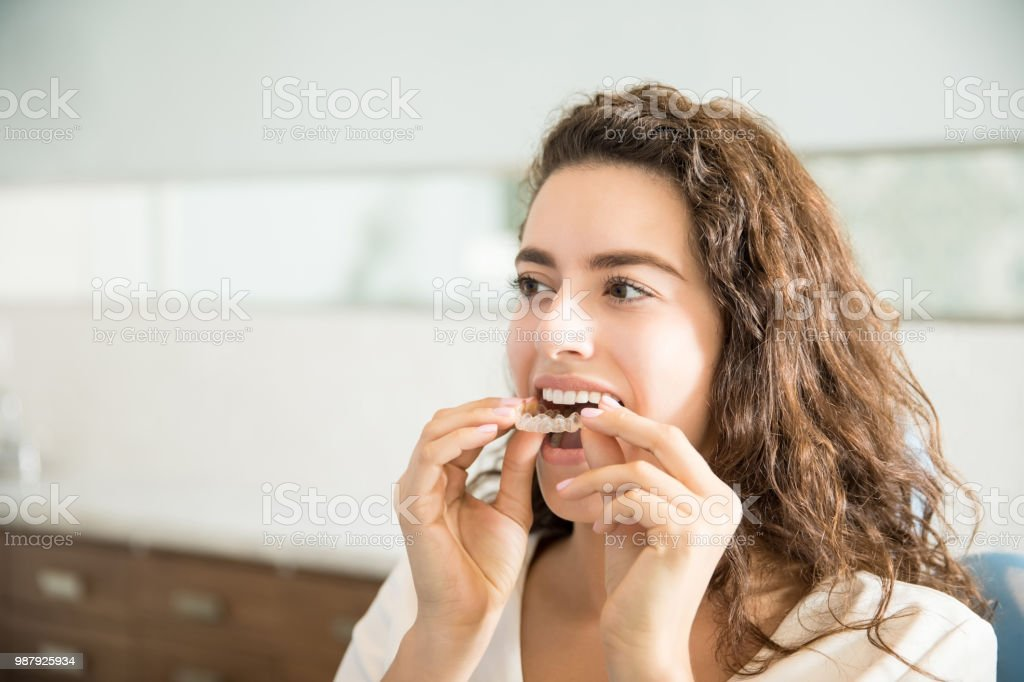 Woman Wearing Clear Aligner In Dental Clinic stock photo