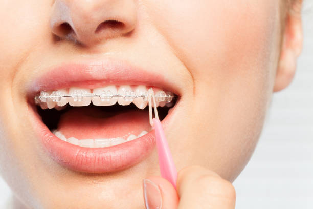 Woman wearing the elastics over hook of bracket stock photo