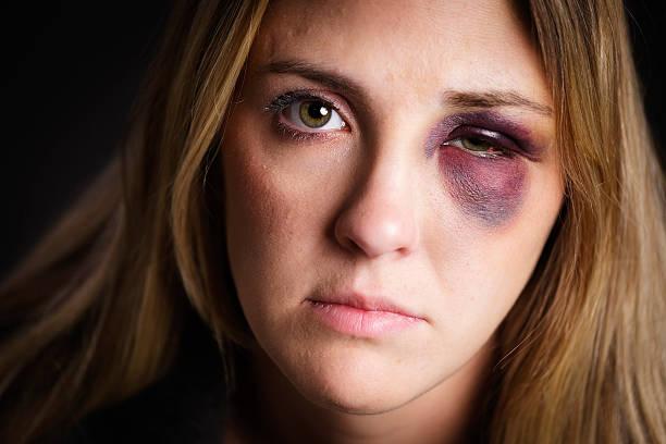 woman with a black eye - blauwe plek stockfoto's en -beelden