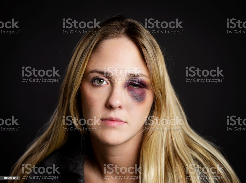 Woman with a Black Eye stock photo