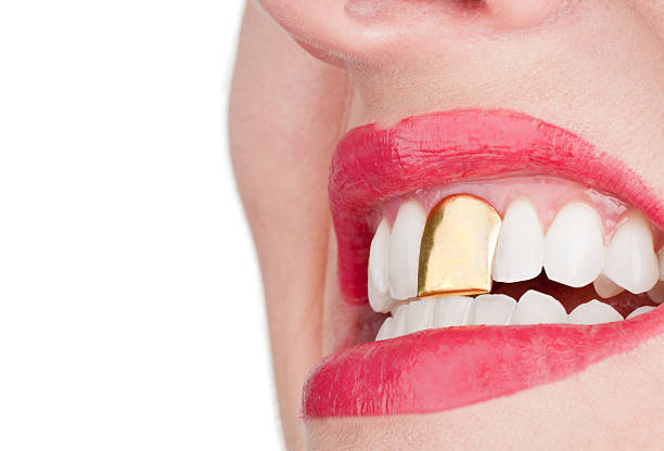 woman with a gold front tooth - gold tooth stock photos and pictures