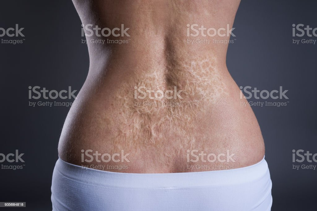 Woman with a large scar after burn on the back stock photo