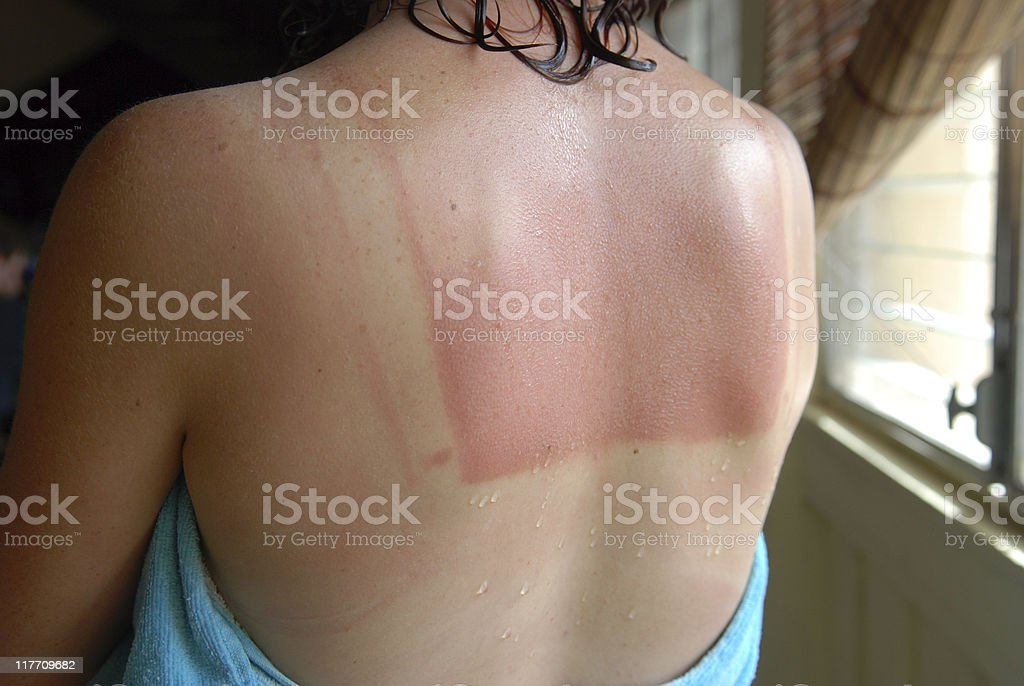 Sunburned back after shower stock photo
