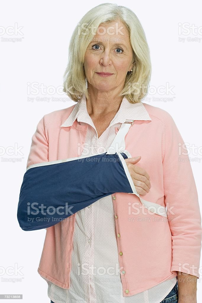 Woman with arm in a sling stock photo