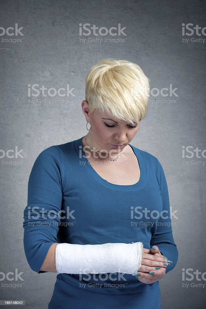 Woman with arm in  cast stock photo