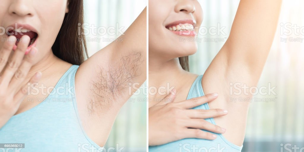 woman with armpit plucking stock photo