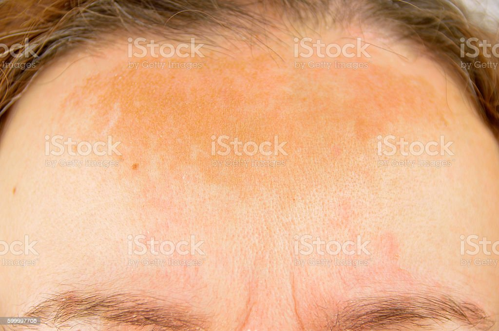 woman with atopic dermatitis stock photo