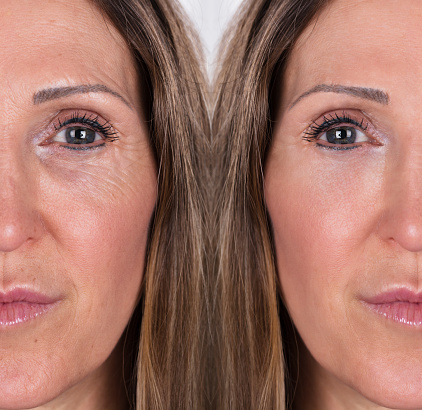 istock Woman With Before And After Rejuvenation 958340316
