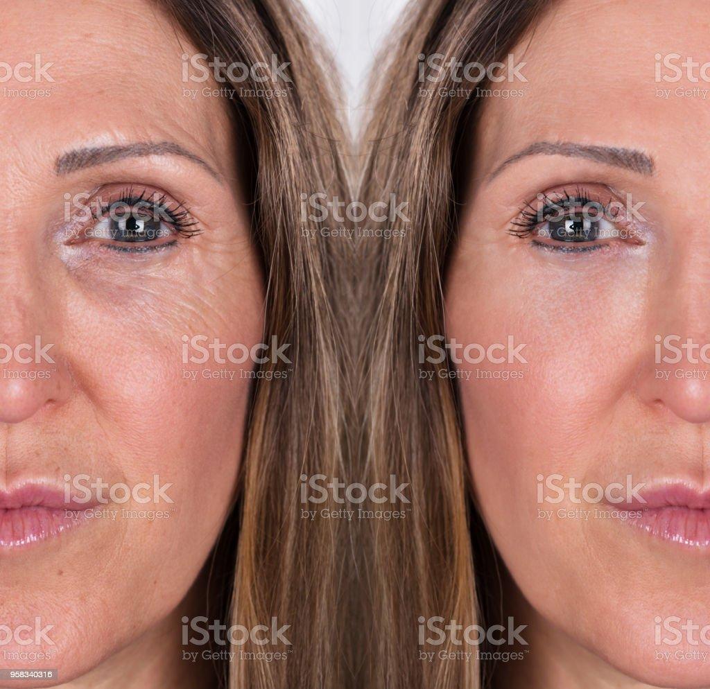 Frau mit vor und nach der Verjüngung – Foto