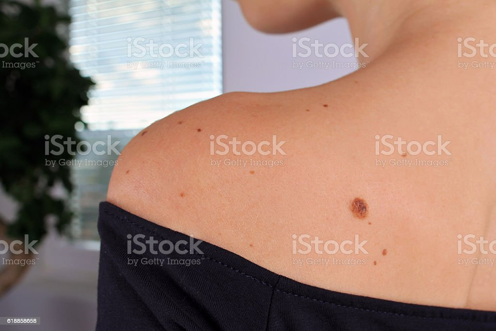 Woman with birthmarks on her skin.Skin tags removal. - foto de stock