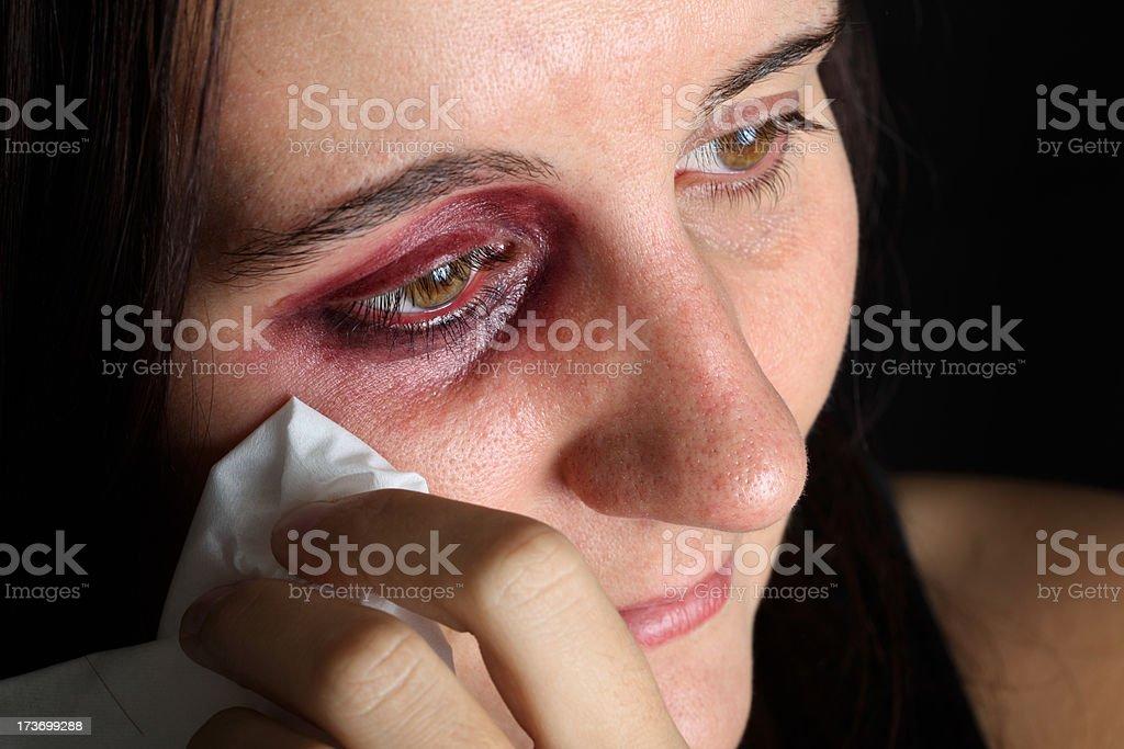 Woman With Black Eye royalty-free stock photo
