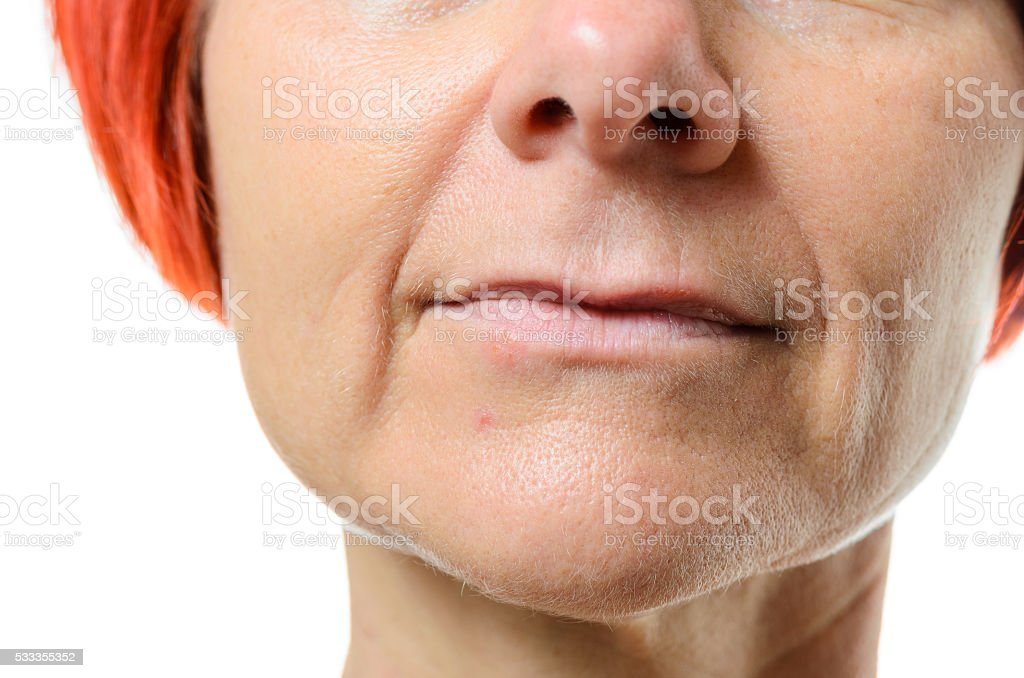 Woman with blemish on chin stock photo