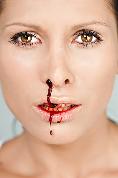 Woman with bloody nose stock photo