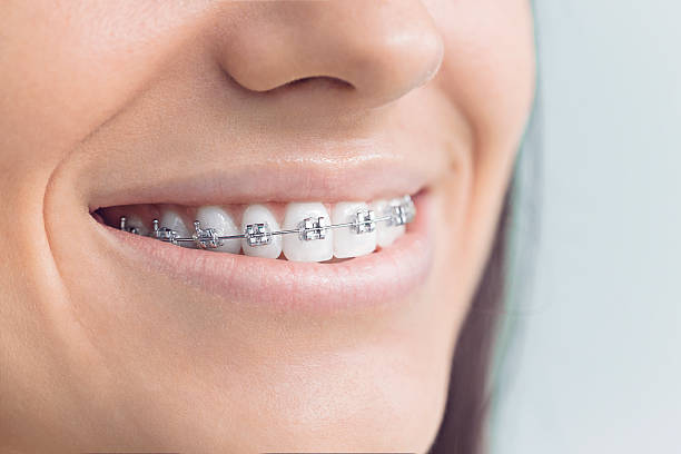 Woman with brackets - Photo