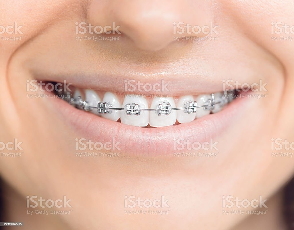 Woman with brackets - foto de stock