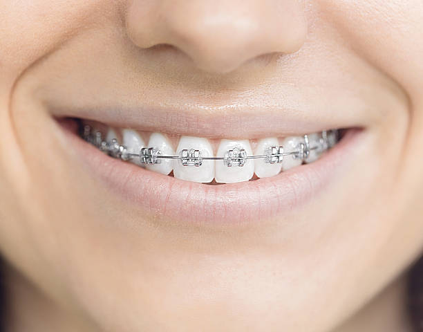 Woman with brackets stock photo
