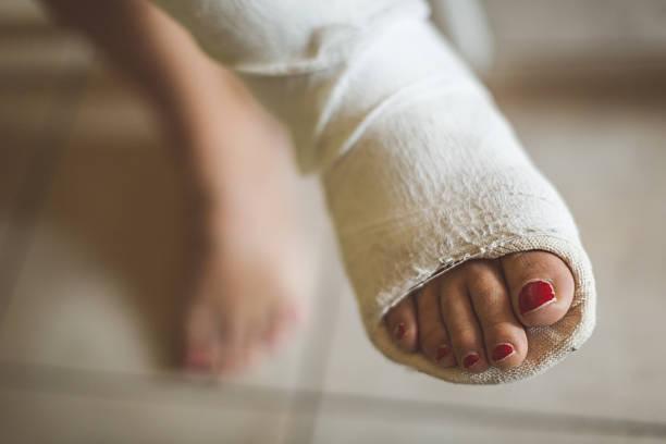 woman with broken leg - broken leg stock photos and pictures