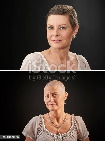 469949126 istock photo Woman with cancer in chemotheraphy after and before 504855876